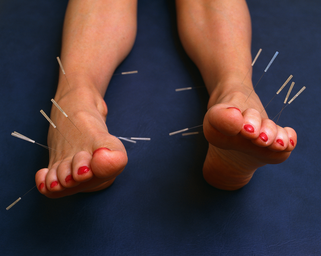 Acupuncture Needles Sticking Out from Feet