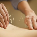 Jennifer Poplar demonstrating acupuncture